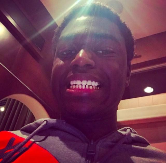 Kodak Black Surgically Removes his 24 Gold Teeth