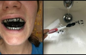 I Brushed My Teeth With Charcoal For 7 Days: Here's What My Mouth Looked Like By The End