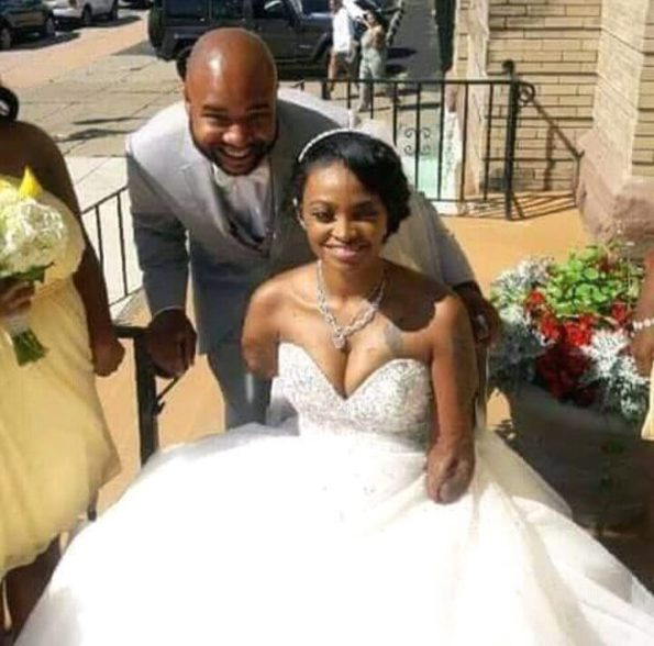 Man marries beautiful lady without hands and legs (Photos)