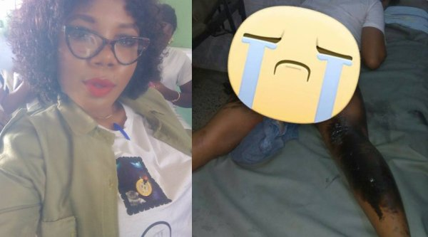 Corps member narrates how she survived a fire after accident in Rivers State lailasnews