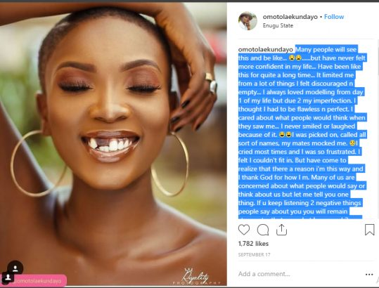 Bullied Nigerian model embraces her insecurity lailasnews 1