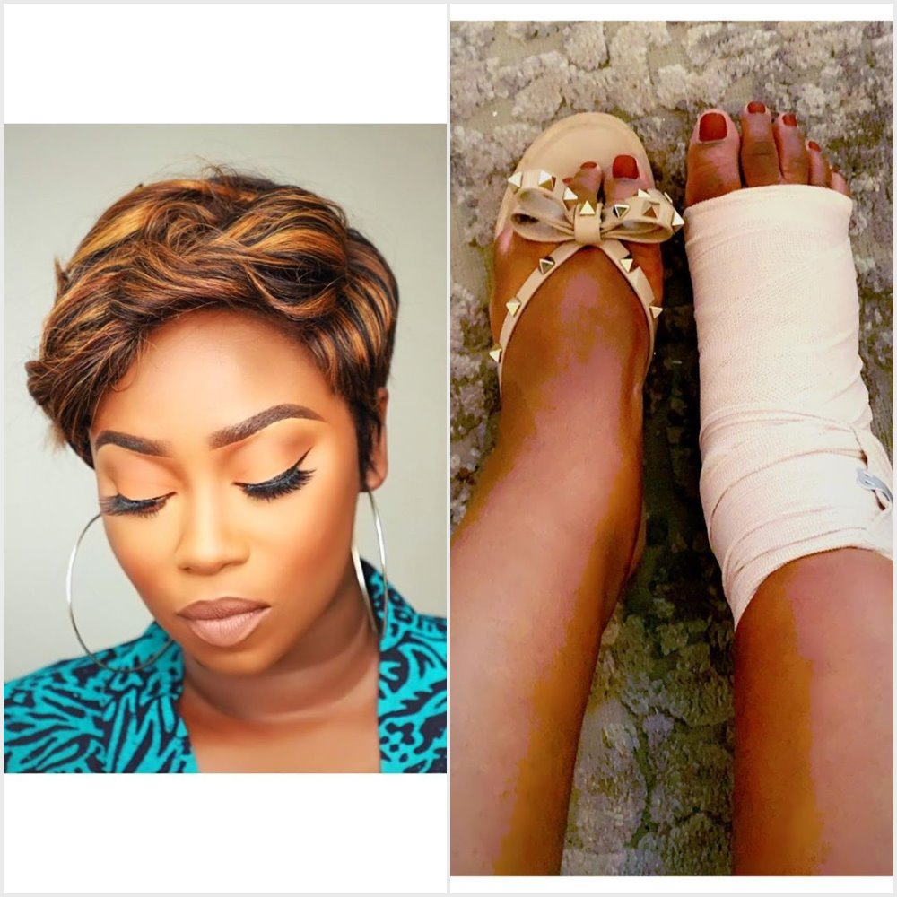 TV Personality Peace Hyde involved in an accident, gets 3 months Bed Rest