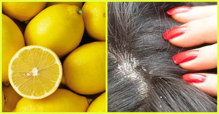 7 Ways to Use Lemon for Beauty
