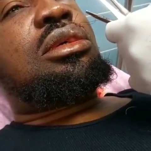 'I passed out twice' — Mr Raw hospitalized after Car Crash (video)